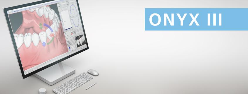 OnyxCeph³ III (3D): Virtuelle Setuperstellung