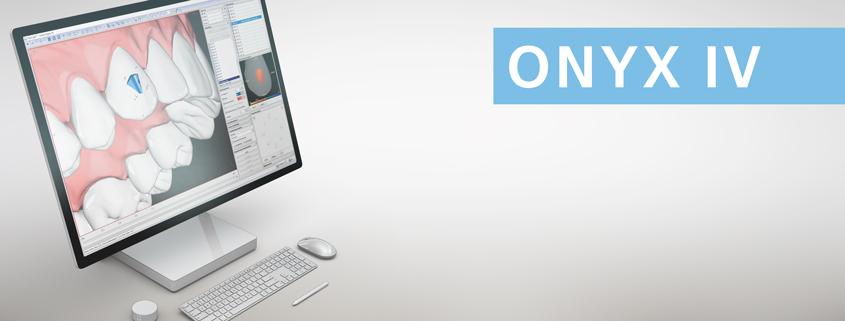 OnyxCeph³ IV (3D): Alignertherapie im Eigenlabor